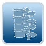 marfan-ortho-spine